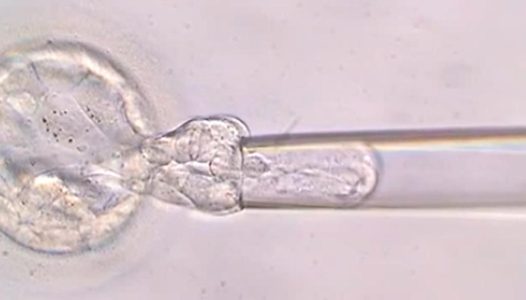 Diagnóstico Genético Preimplantacional del Embrión (DGP)
