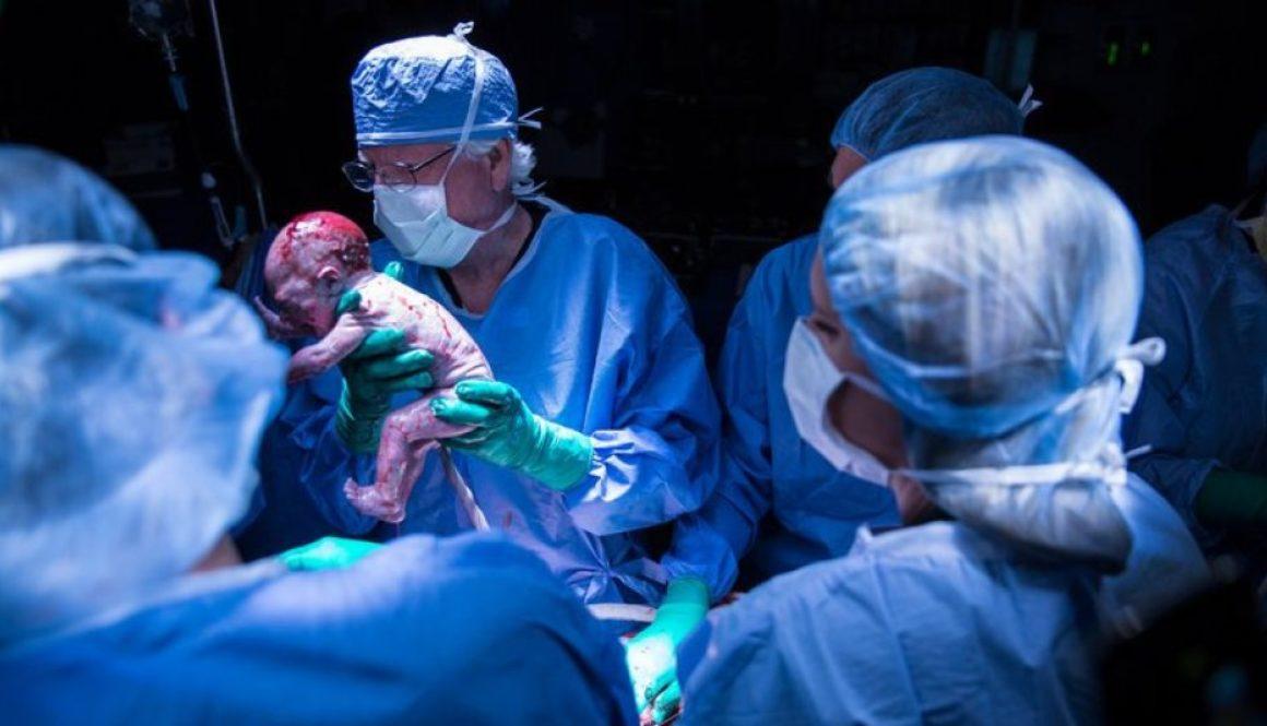 Nace el primer bebé de EE.UU. de un útero trasplantado