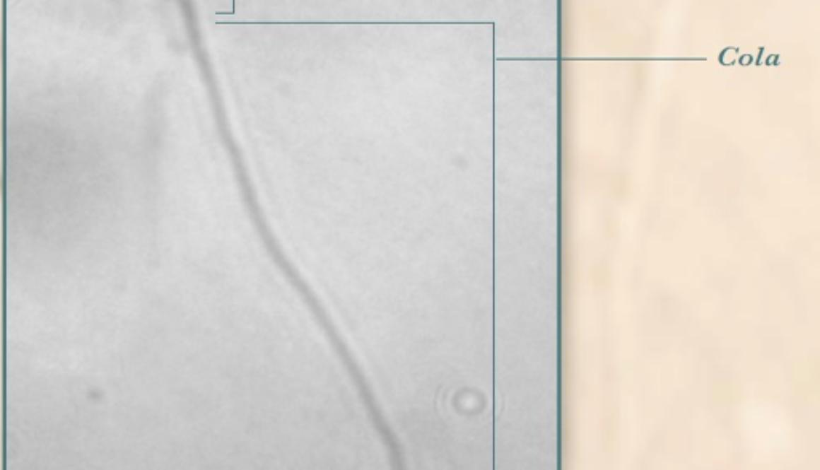 El Espermatozoide humano visto en 1000 aumentos
