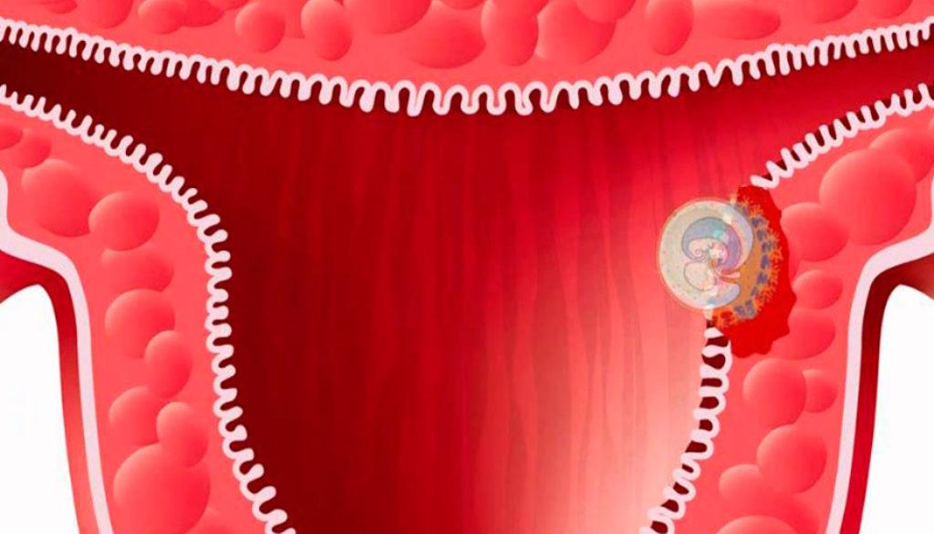 Etapas paso a paso de la implantación embrionaria