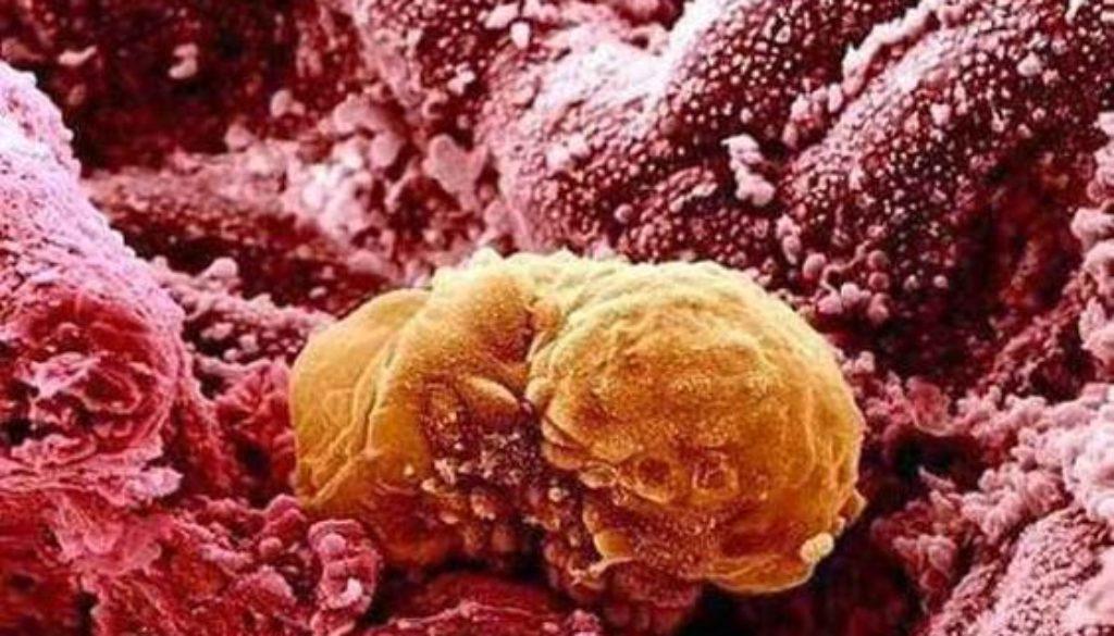 Los científicos observan por primera vez cómo se desarrolla un embrión tras implantarse en el útero