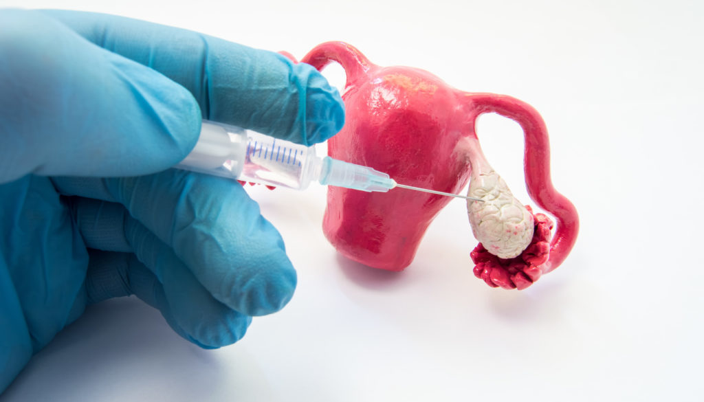 Riesgos y complicaciones de la reproducción asistida