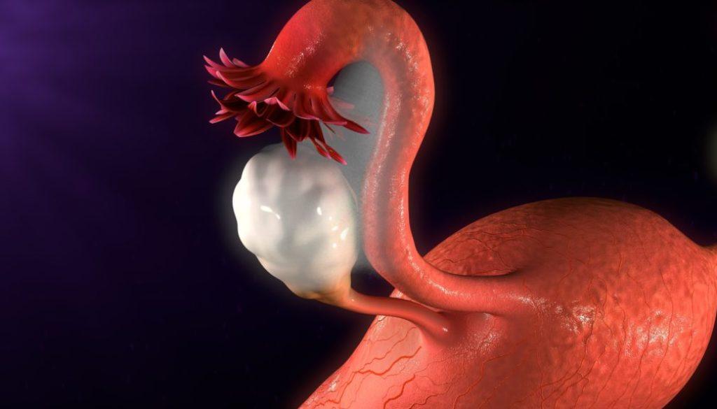 Todo sobre el síndrome de ovarios poliquísticos