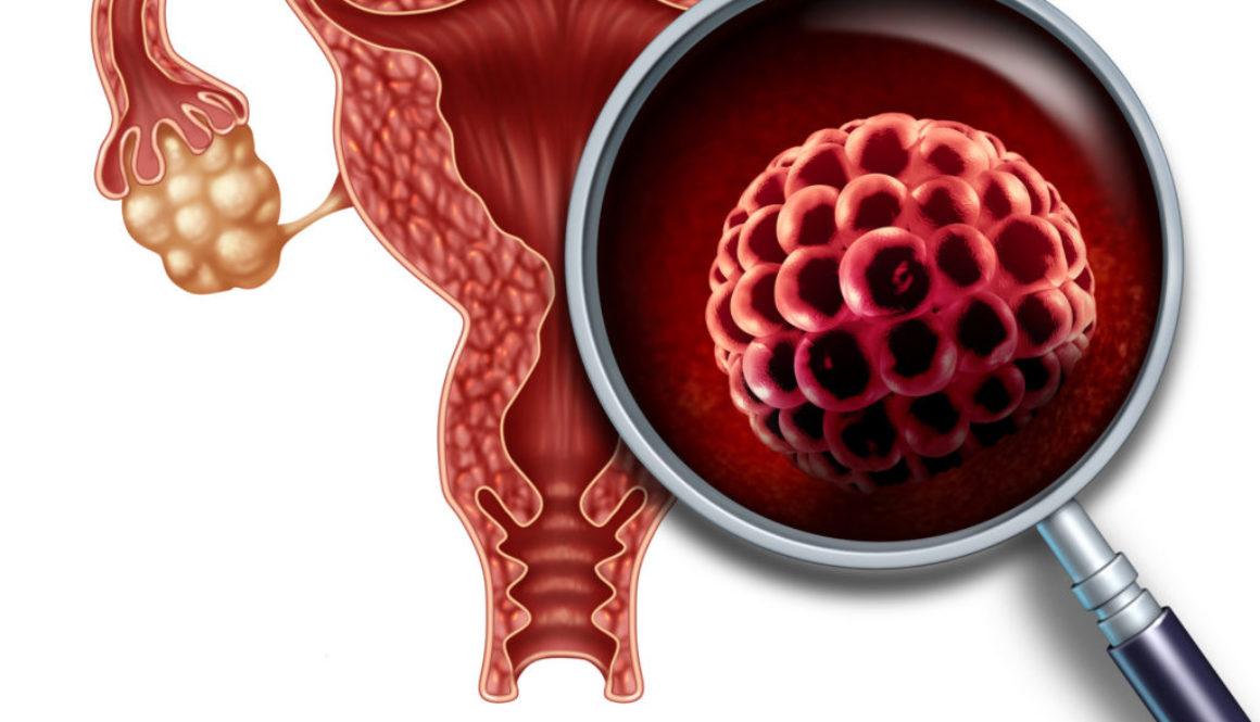 Un grupo de científicos cuestiona la fiabilidad del Diagnóstico Genético Preimplantacional