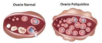 ¿Puedo quedarme embarazada si tengo ovarios poliquísticos?
